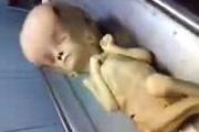 Aliën autopsie
