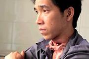 Failed machete suicide