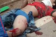 Open leg wound
