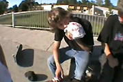 skateboard fail aftermath