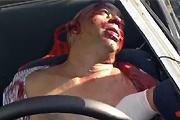 No seatbelt car accident