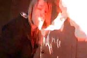 girl face burn