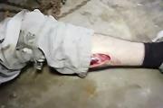 nasty leg wound