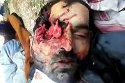 Headshot murders