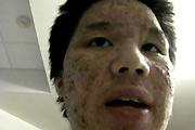 Allergic reaction to accutane