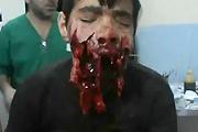 Kid shot in Syria