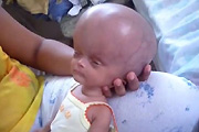 Horribly deformed baby