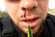 Fishing Hook In Face