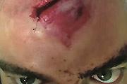 Head Wound From Shrapnel