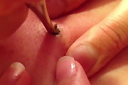The Blackhead From Hell