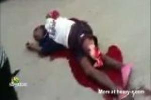 Pedestrians loses leg