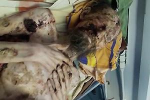 Living Mummie