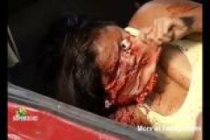 Dead Sewage Baby