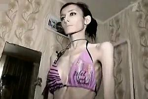 Anorexic Girl Anal Sex - Anorexic Girl Starving Herself