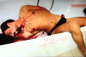Throat Slit In Bathtub