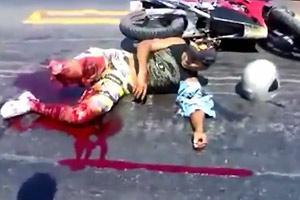 Biker Lost his Leg