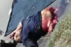 Accident Ripped Biker In Half