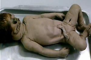 Dead Deformed Baby Bodies