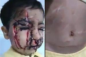 Childs Face Cut Up