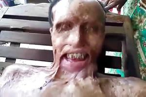 Man got burnt with acid. Happened in Cambodia