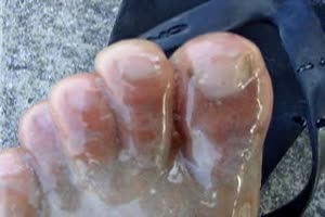 foot hardened with epoxy glue