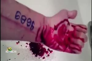 Wrist Cutter Bleeding Out