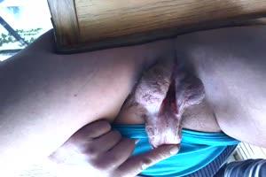 Penile subincision
